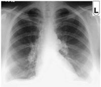 Southeast Houston Pulmonology: Pulmonary medical services, lung ...